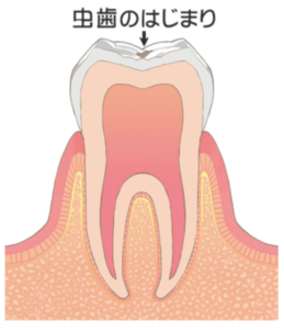 大田区(下丸子・武蔵新田・鵜の木)の歯医者 野原歯科 虫歯c0