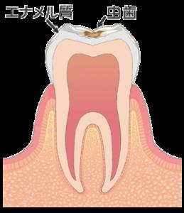大田区(下丸子・武蔵新田・鵜の木)の歯医者 野原歯科 虫歯c1