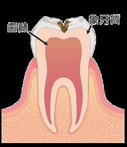 大田区(下丸子・武蔵新田・鵜の木)の歯医者 野原歯科 虫歯c2