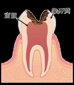 大田区(下丸子・武蔵新田・鵜の木)の歯医者 野原歯科 虫歯c3