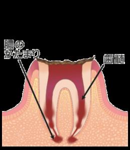 大田区(下丸子・武蔵新田・鵜の木)の歯医者 野原歯科 虫歯c4